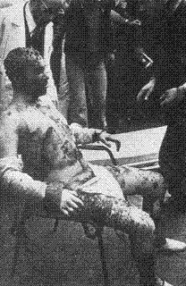 Años de Plomo: Un Fascista quemado vivo